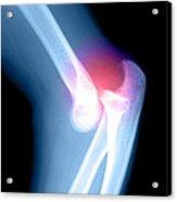 Elbow Injury Acrylic Print