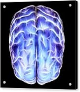 Electrical Activity In The Brain Acrylic Print