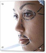 Facelift Surgery Markings Acrylic Print