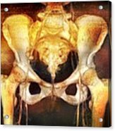 Female Pelvis, Coloured 3-d Ct Scan Acrylic Print