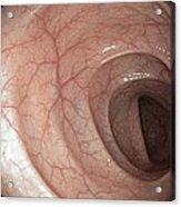 Healthy Colon, Large Intestine Acrylic Print by Gastrolab