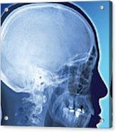 Healthy Skull, Coloured X-ray Acrylic Print
