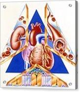 High Blood Pressure, Artwork Acrylic Print