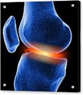 Inflamed Knee Cartilage, Computer Artwork Acrylic Print