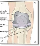 Knee After Knee Replacement, Artwork Acrylic Print by Peter Gardiner