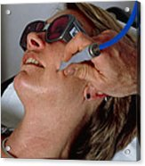 Laser Skin Treatment Acrylic Print