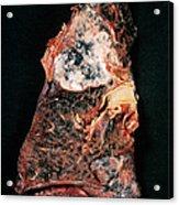 Lung Cancer Acrylic Print