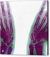 Marfan's Syndrome Acrylic Print