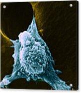 Metastasis Acrylic Print