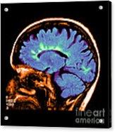 Mri Of Multiple Sclerosis Acrylic Print