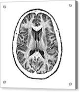 Normal Cross Sectional Mri Of The Brain Acrylic Print