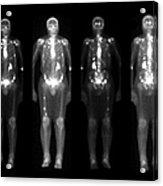 Nuclear Medicine Bone Scan Acrylic Print