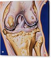 Osteoarthritic Knee Acrylic Print