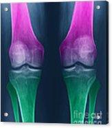 Osteoarthritis Of The Knees Acrylic Print