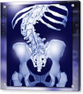 Osteoporosis Of The Spine, Ct Scan Acrylic Print