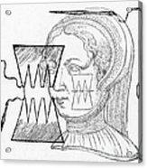 Par� Suture, 1500s Acrylic Print