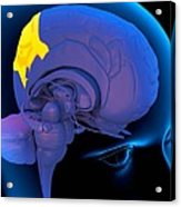 Parietal Lobe In The Brain, Artwork Acrylic Print