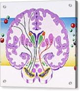 Parkinson's Disease Acrylic Print