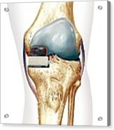 Partial Knee Replacement, Artwork Acrylic Print