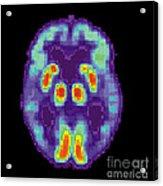 Pet Scan Of Alzheimers Disease Brain, 2 Acrylic Print