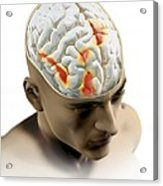 Placebo Effect In The Brain, Artwork Acrylic Print