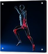 Running Injuries, Conceptual Artwork Acrylic Print