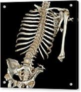 Skeletal Reconstruction Acrylic Print