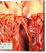 Subacute Bacterial Endocarditis Acrylic Print