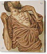 Suicide Through Stabbing 1898 Acrylic Print