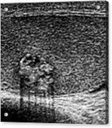 Testicular Cancer, Ultrasound Scan Acrylic Print