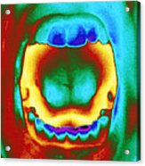 Thermogram Of A Woman's Mouth And Teeth Acrylic Print