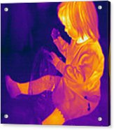 Thermogram Of A Young Girl Acrylic Print