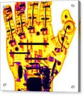 Toy Robotic Hand X-ray Acrylic Print