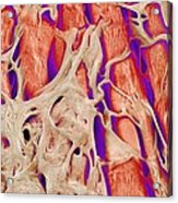 Trabeculae Carneae In The Heart, Sem Acrylic Print by Susumu Nishinaga