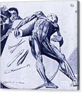 Two Gentlemen Contemplating A Cadaver Acrylic Print