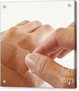 Two Hands With Bandage Acrylic Print