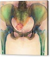 Uterine Fibroid Acrylic Print