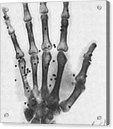 X-ray Of A Hand With Buckshot Acrylic Print
