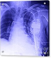 X-ray Of A Pacemaker Acrylic Print