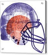 X-ray Of Head In Football Helmet Acrylic Print