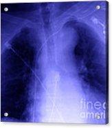 X-ray Of Implanted Defibulator Acrylic Print