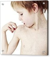 Young Boy Scratching His Eczema Acrylic Print by Ian Boddy