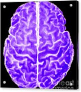 Enhanced 3d Surface Rendering Of Brain Acrylic Print