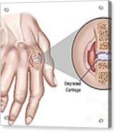 Rheumatoid Arthritis Acrylic Print