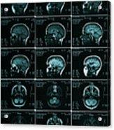 Mri Of Normal Brain Acrylic Print