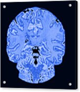 Coronal View Mri Of Normal Brain Acrylic Print by Medical Body Scans