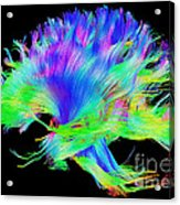 Fiber Tracts Of The Brain, Dti Acrylic Print
