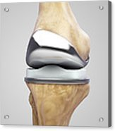 Knee Replacement Acrylic Print