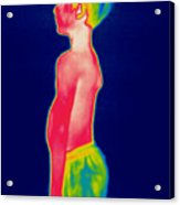 A Thermogram Of A Boy In Shorts Profile Acrylic Print