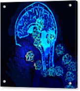 Al In The Mind Black Light View Acrylic Print